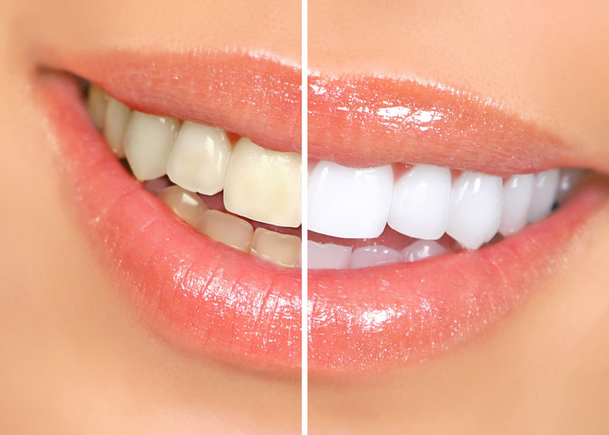 Life-Centered Dentistry Teeth whitening before and after picture